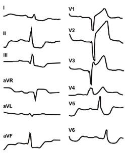 ЭКГ острого инфаркта переднесептальной области