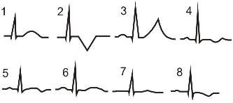 Атеросклероз артерий нижних конечностей патогенез симптомов